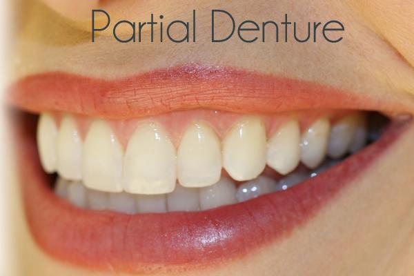 how to clean plaque of plastic denture